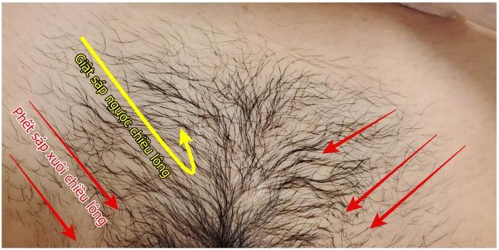 Phết sáp wax xuôi chiều lông mọc và giật sáp ngược chiều lông mọc